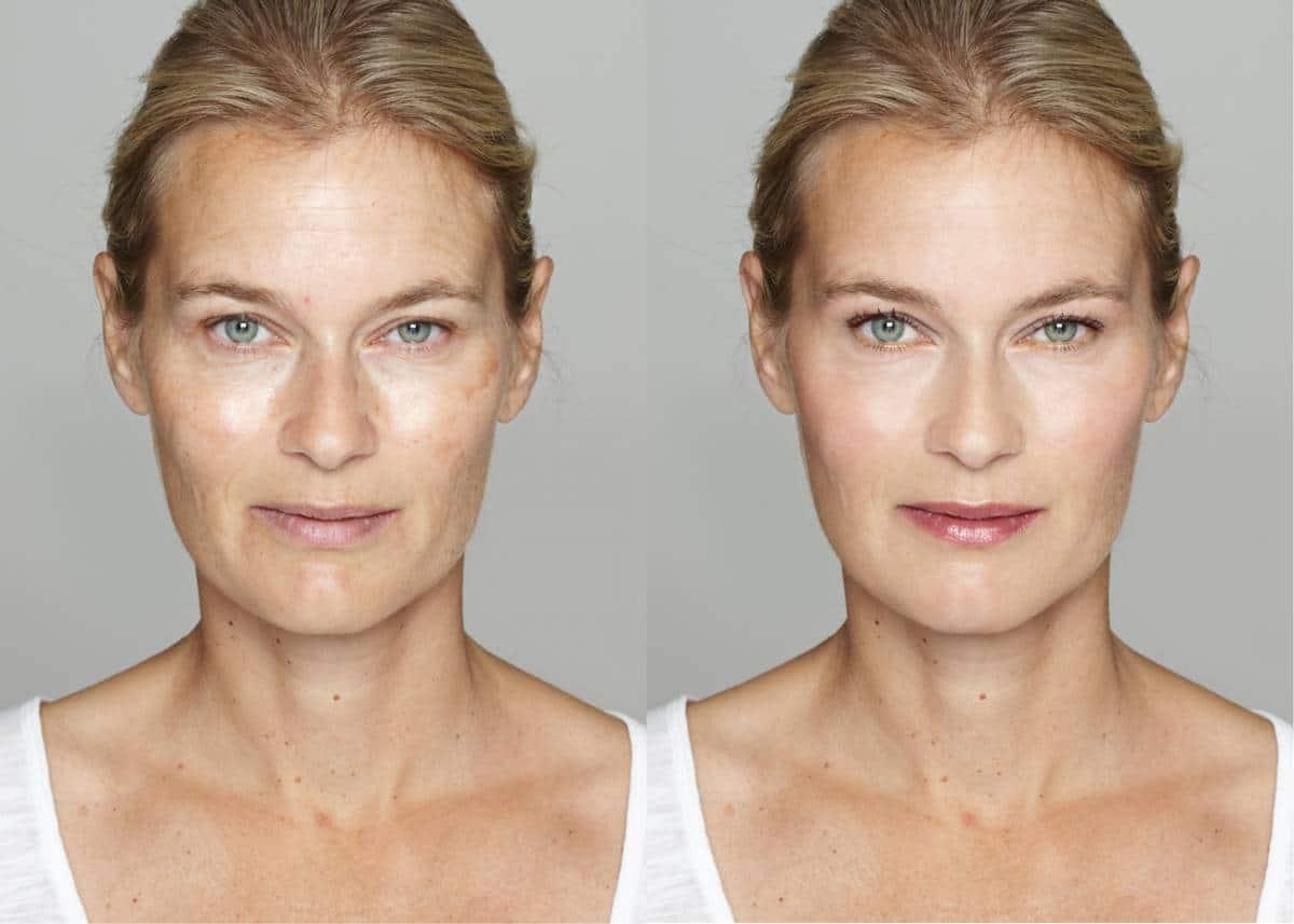 Comment faire disparaitre les taches brunes sur le visage, mains etc... ?