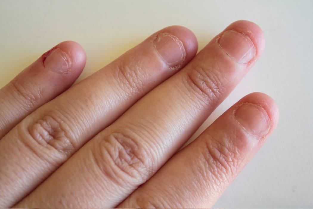 comment arreter de se ronger les ongles