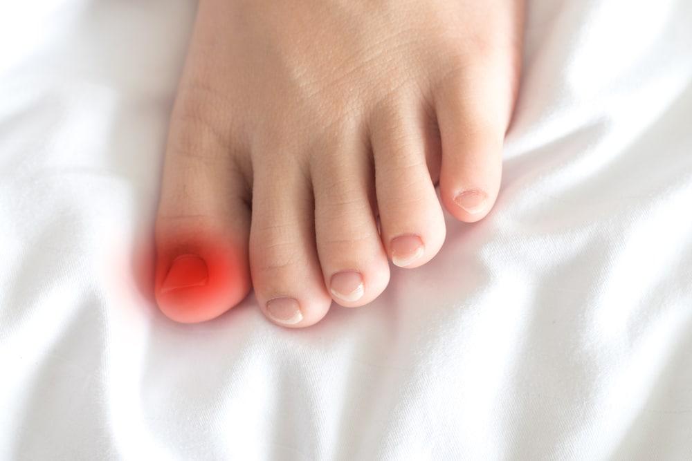 maladies des ongles
